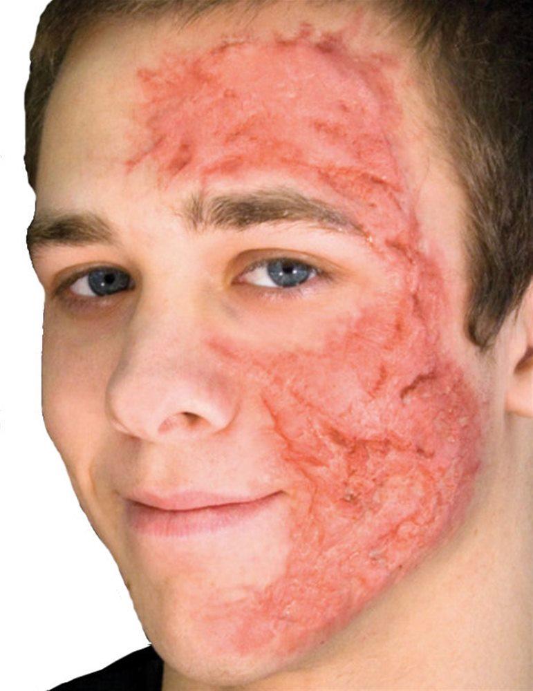 Picture of Woochie Burn Scar Gel Appliance