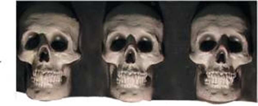 Picture of Skull Trim Horizontal