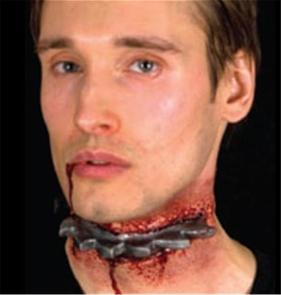 Picture of Woochie Neck Saw Wound