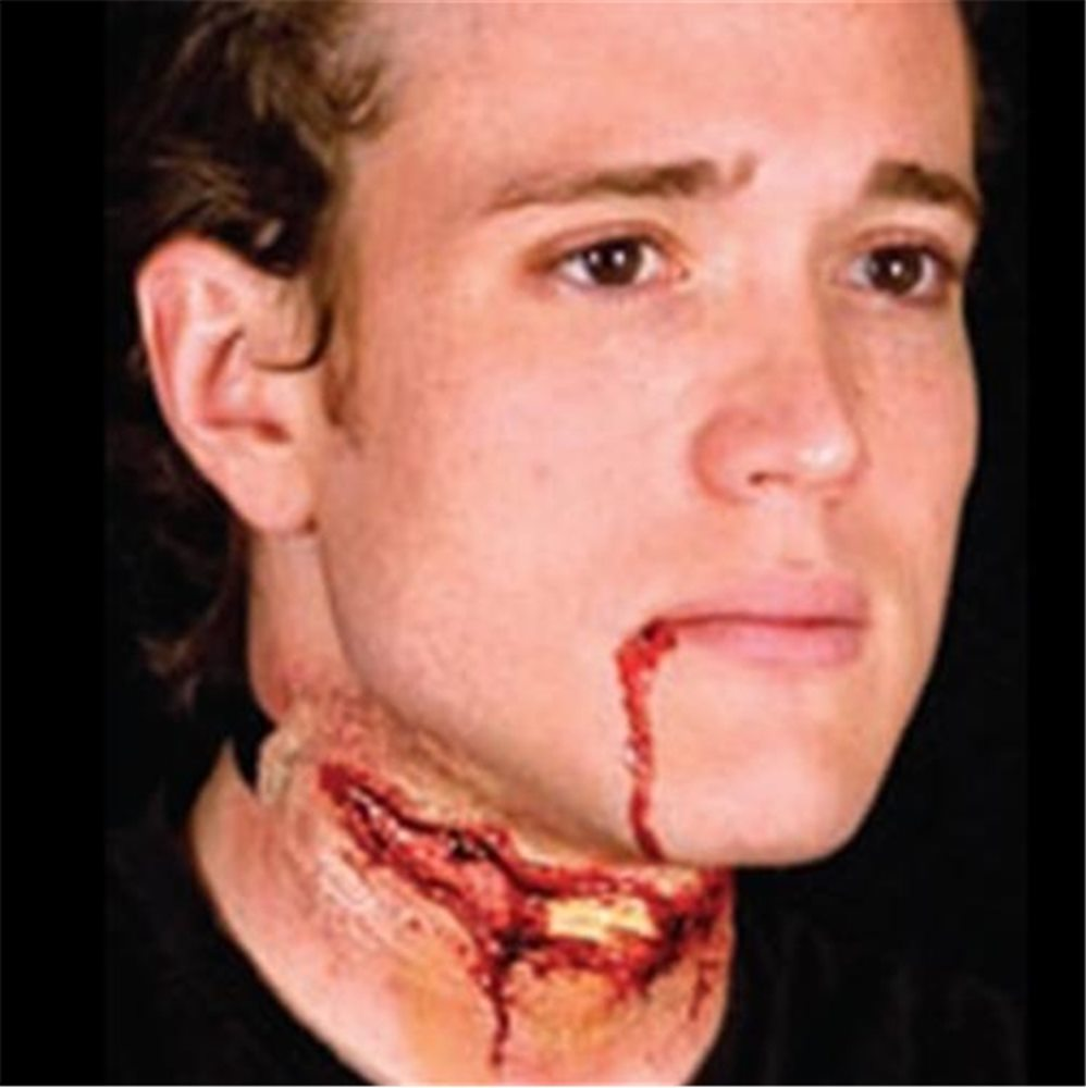 Picture of Woochie Slashed Neck Wound Appliance