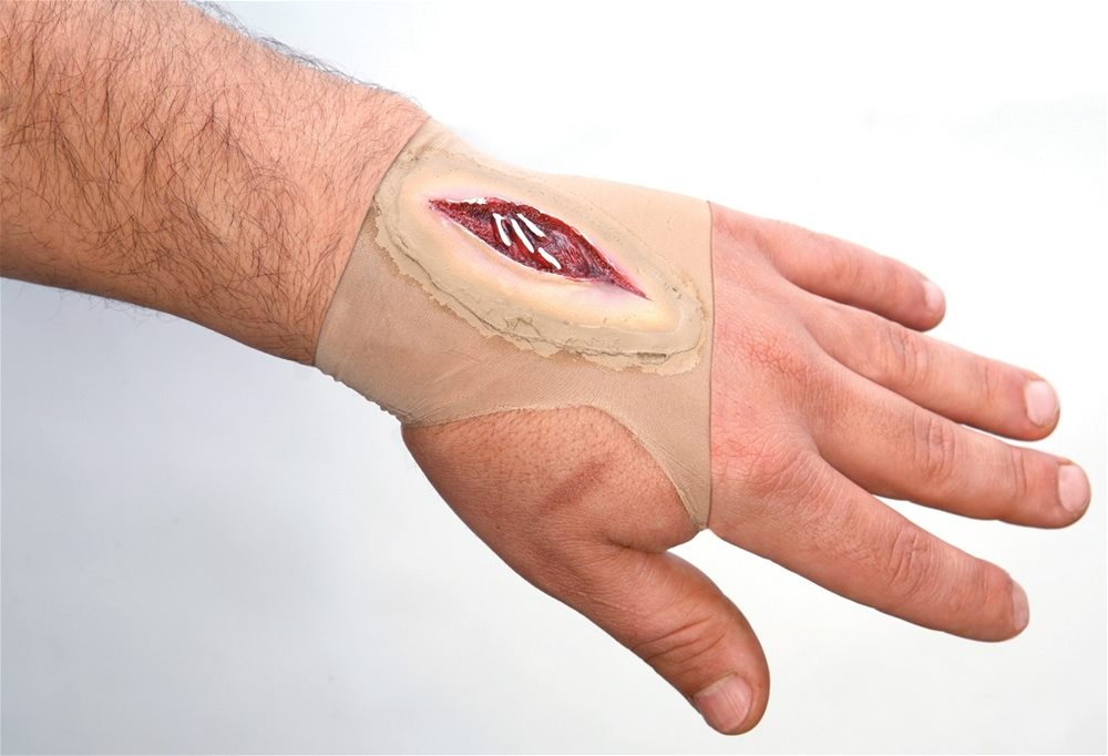 Picture of Gashed Hand Wound Sleeve